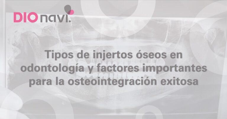 Tipos de injertos óseos en odontología y factores importantes para la osteointegración exitosa.